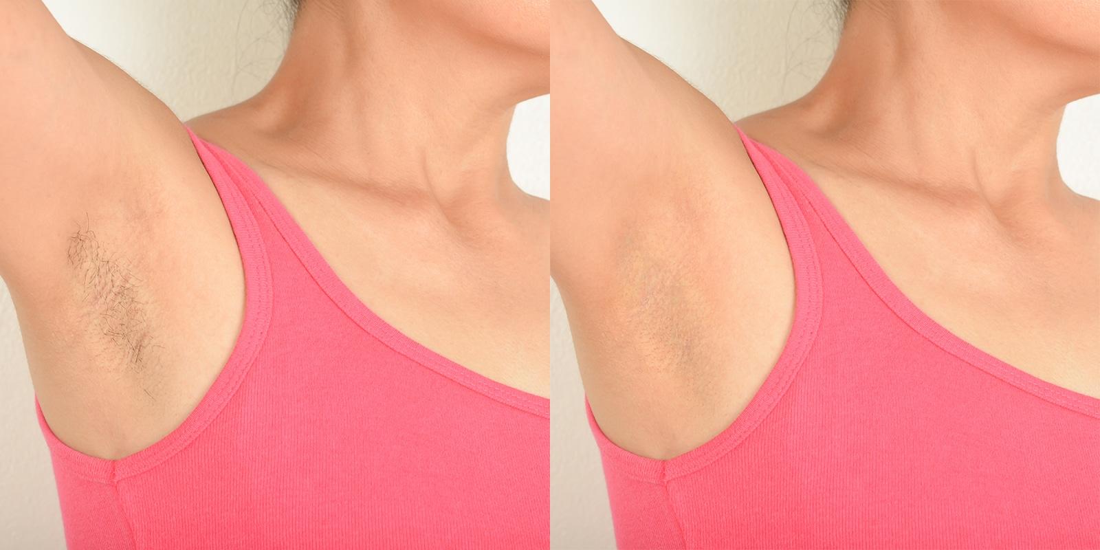 Achseln einer Frau: Vorher-Nachher Vergleichsbild der dauerhaften Haarentfernung mit Laser.
