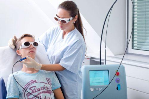 Aknebehandlung mit Laser im Gesicht eines Jugendlichen durch Dr. Zuzana Bauer bei Aestomed Wien