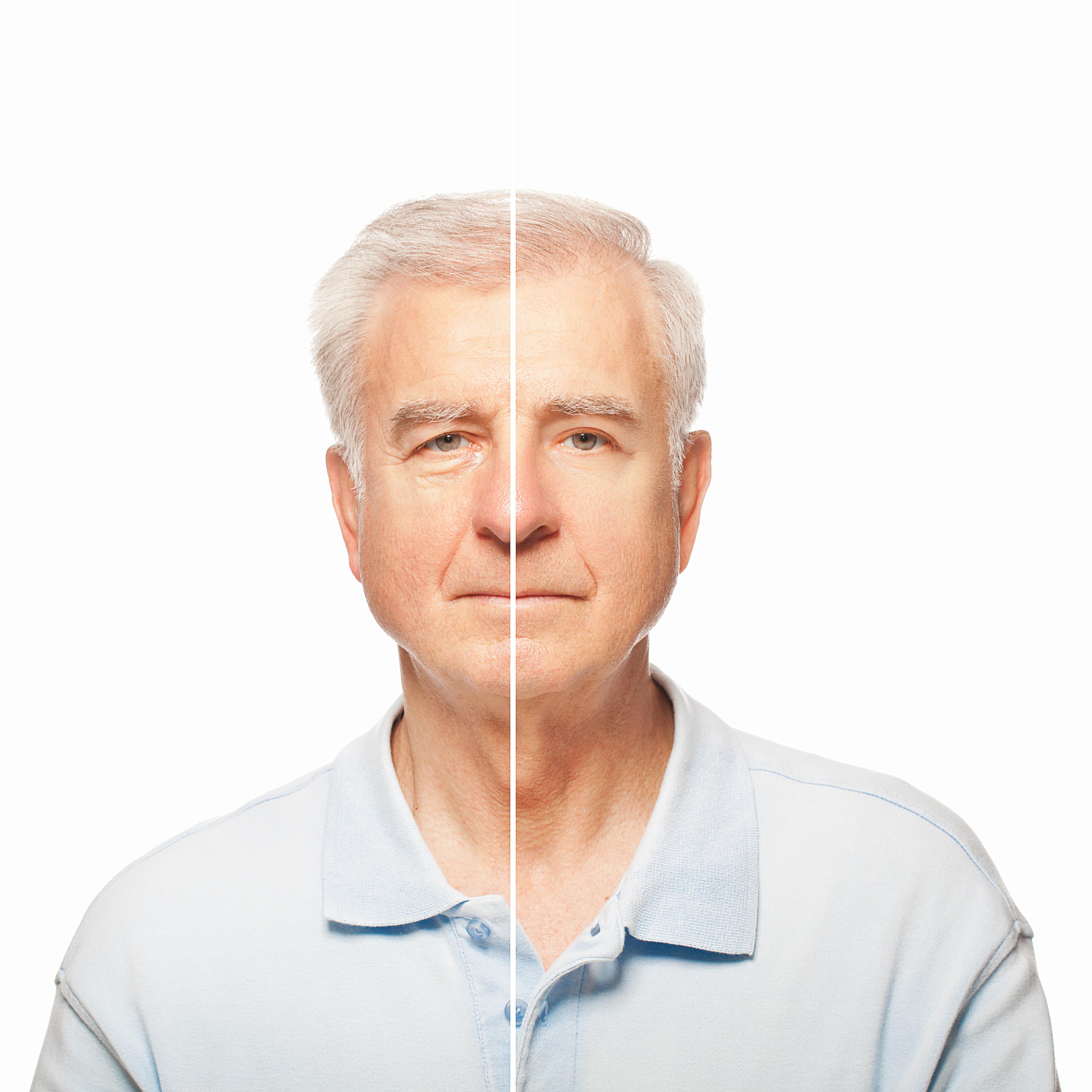 Vorher Nachher Bild der Lidstraffung und Korrektur der Tränensäcke bei einem Mann