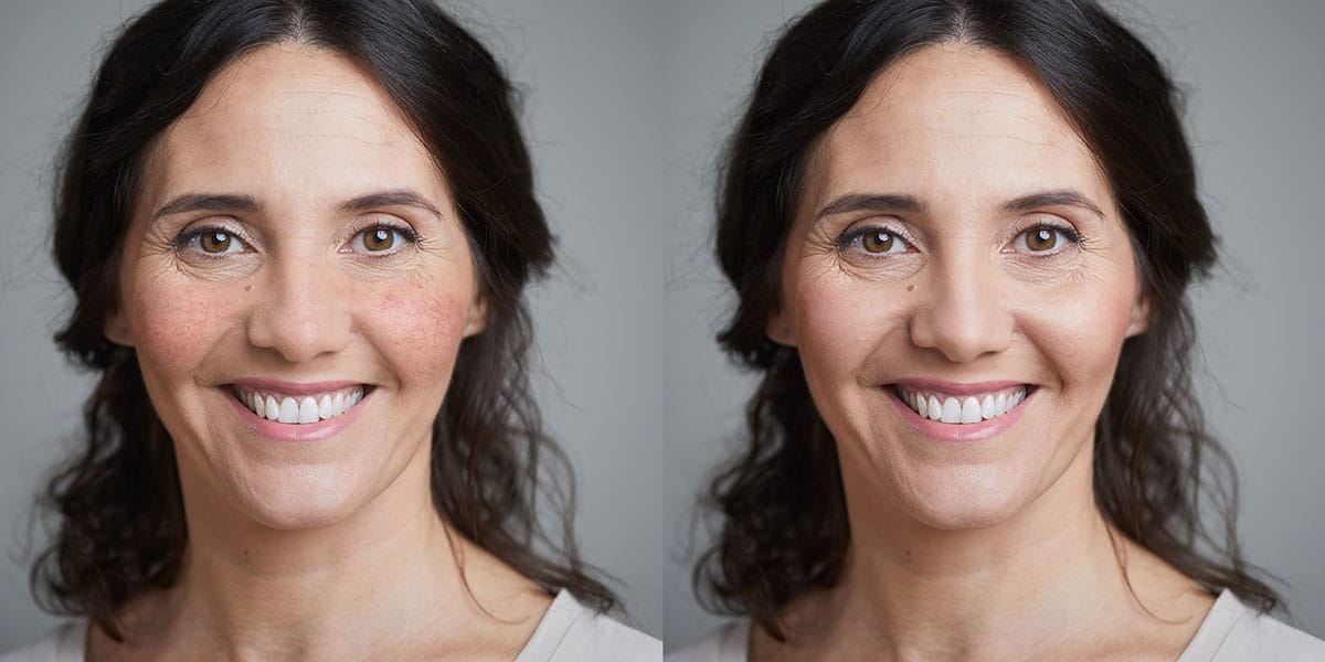 Vorher-Nachher Bild der Couperose Behandlung am Beispiel einer Frau mit Couperose auf den Wangen