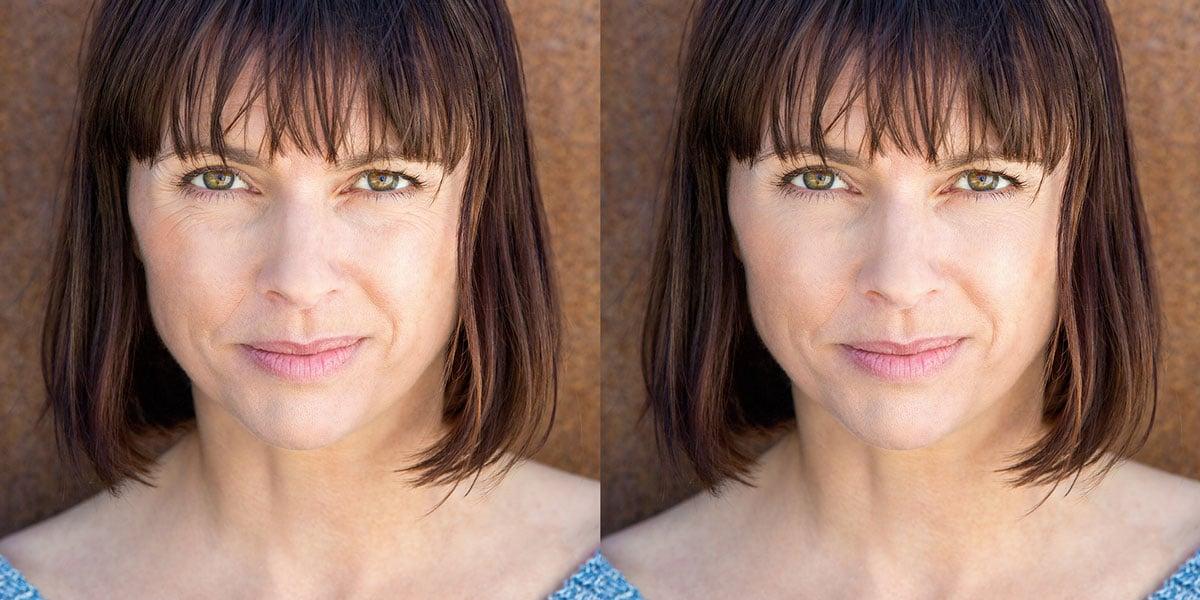 Vorher-nachher Foto der Faltenbehandlung mit Botox einer Frau mit Krähenfüßen