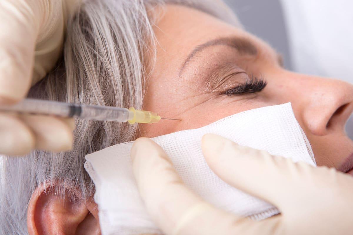 Botox Injektion gegen Falten bei den Augen durch Dr. Zuzana Bauer bei Aestomed in Wien