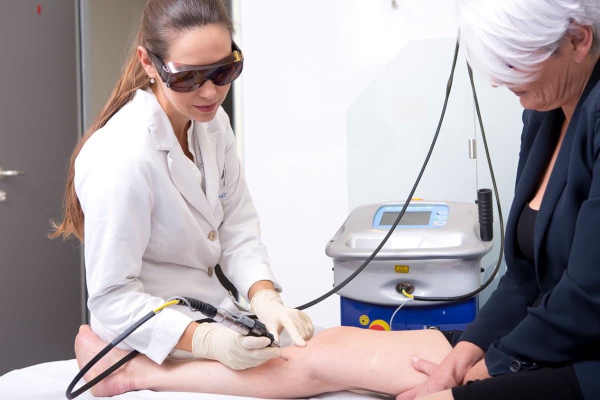Besenreiser Behandlung an den Beinen einer Frau mit NdYAG Laser Smartepil II bei Aestomed in Wien