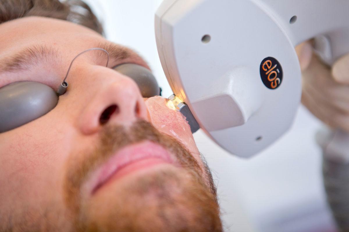 Couperose Behandlung auf der Wange eines Mannes mit dem AURORA IPL System bei Aestomed Wien