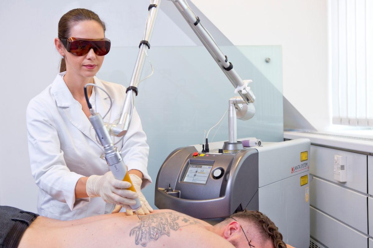 Tattooentfernung am Rücken eines Mannes mit Q-Switched Laser bei Aestomed Wien