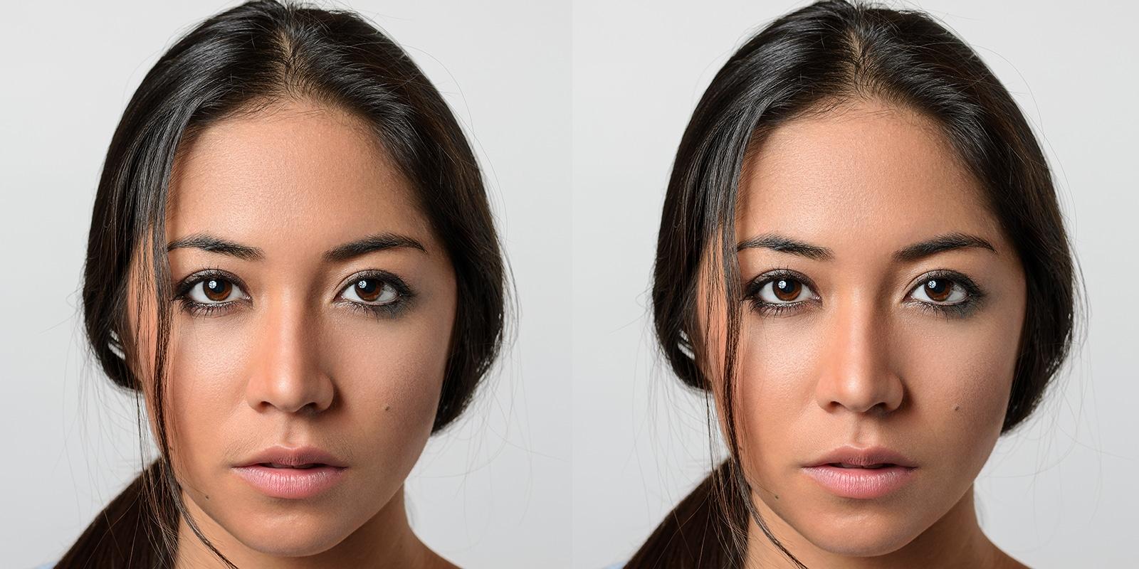 Beispielhaftes Bild Damenbart (Haare auf der Oberlippe) vor und nach der Laserhaarentfernung