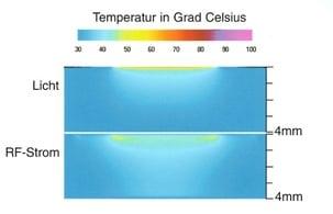 IPL: Effiziente Hautkühlung dank integrierter Kontaktkühlung