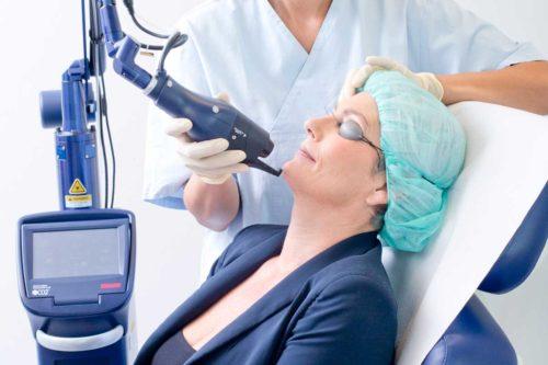 Hautbehandlung mit CO² Laser bei Aestomed Wien