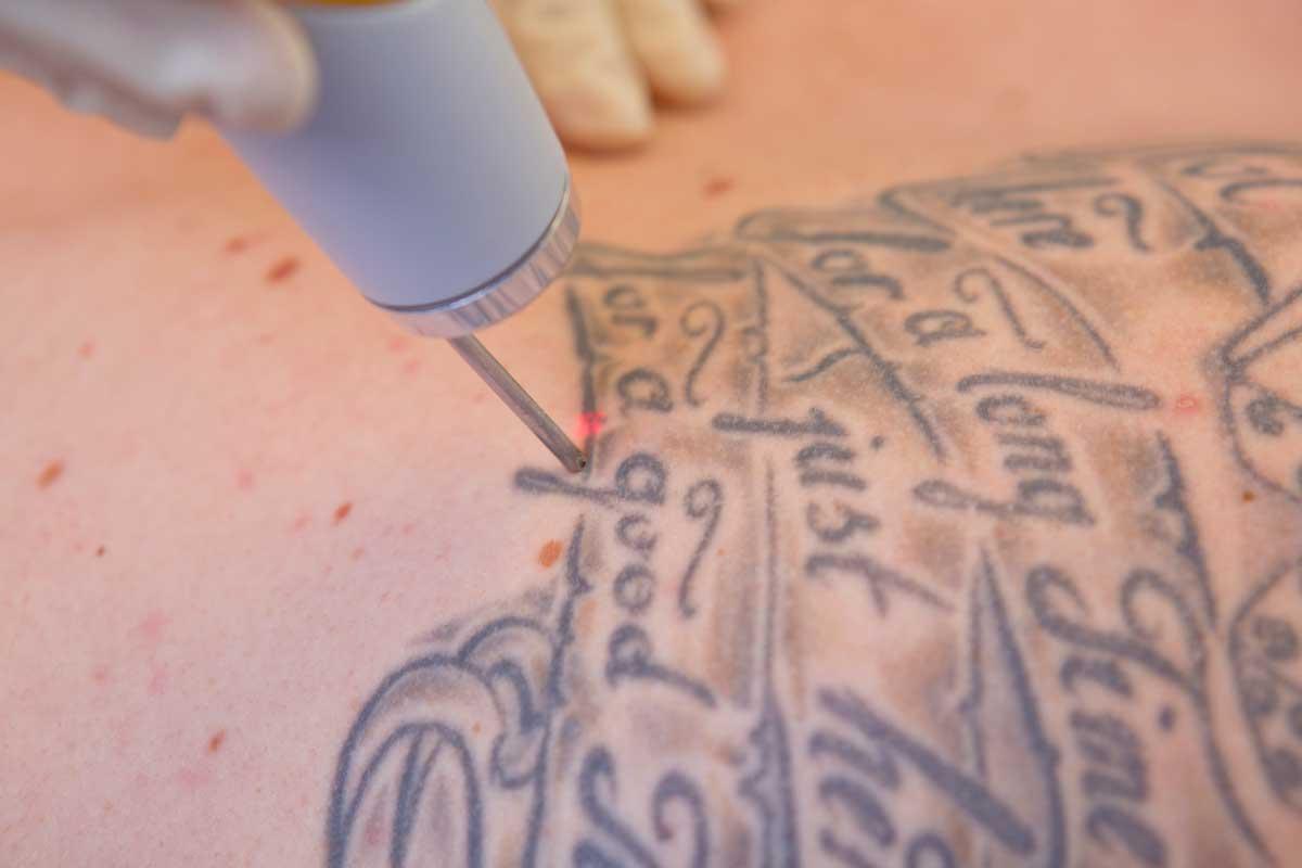 Nahaufnahme der Tattooentfernung mit Laser