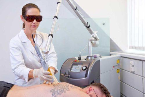 Tattooentfernung mit Laser am Rücken eines Mannes durch Dr. Zuzana Bauer von Aestomed Wien