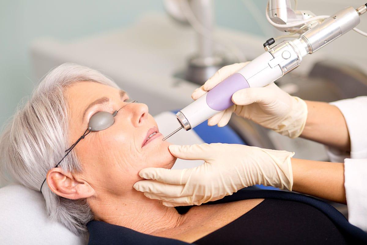Hautverjüngung & Gesichtsstraffung mit Laser bei einer älteren Dame im Aestomed Ambulatorium Wien