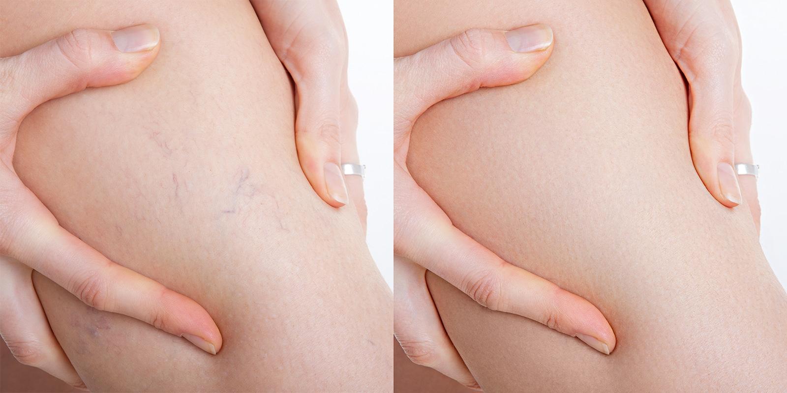 Besenreiser entfernen Vorher-Nachher Foto, Beine einer Frau
