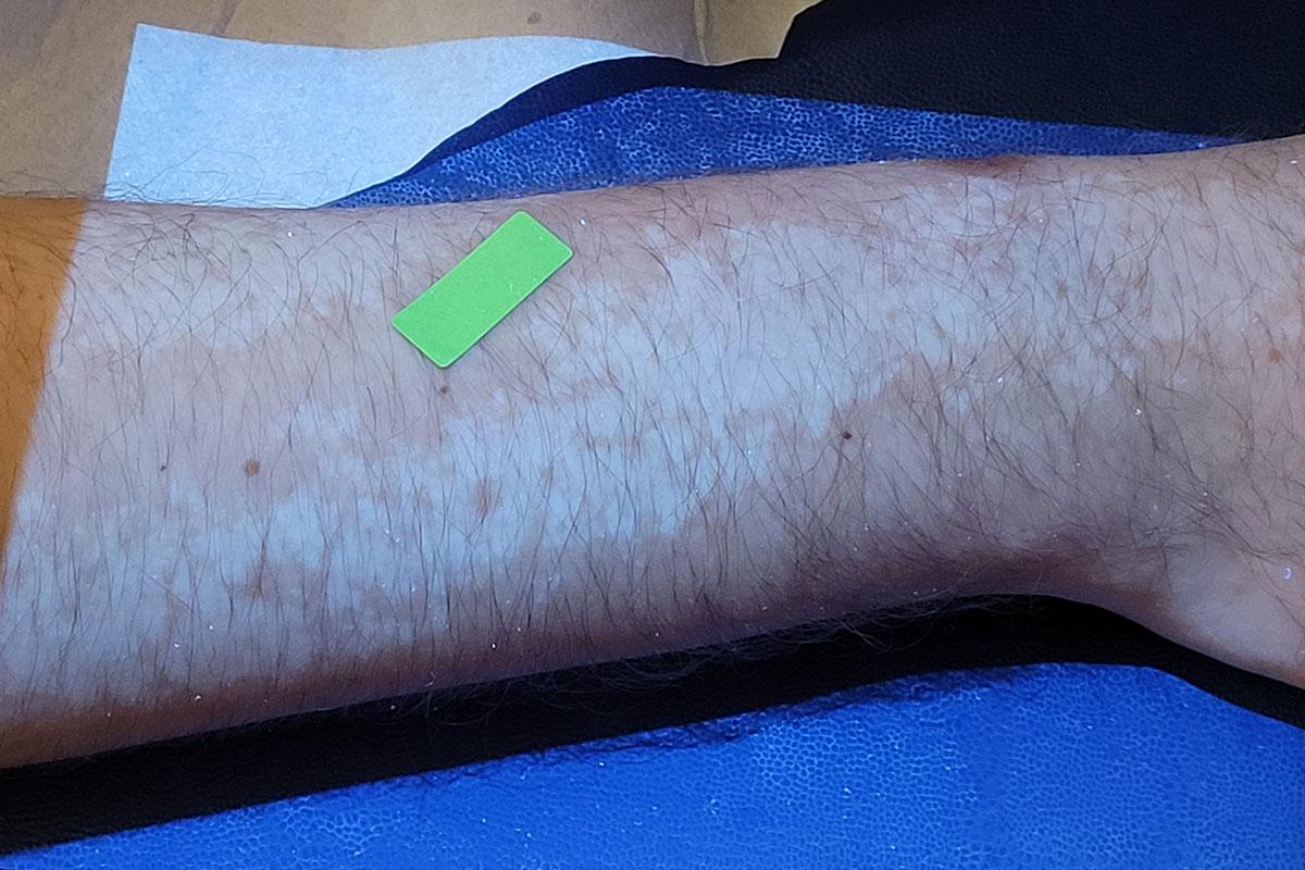 Fototherapie gegen Vitiligo im Aestomed Ambulatorium Wien